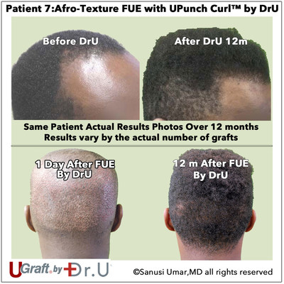 Actual Afro-Textured Hair Transplant FUE Patient of Dr. Sanusi Umar after 12 months of hair growth.