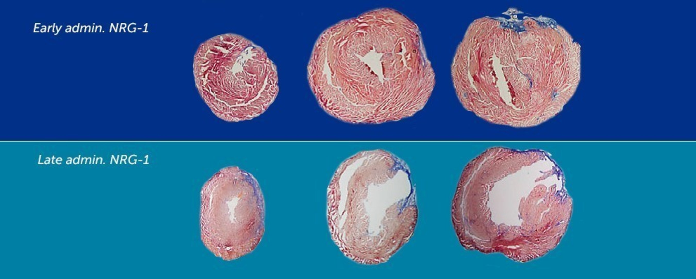 In these sample sections of mouse heart, the color blue signifies scar tissue. Damage from scarring was minimized by early administration of the drug neuregulin.  Read more about this on our Boston Children's Science and Clinical Innovation Blog, Vector.