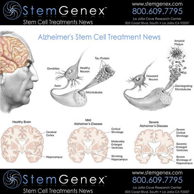 Illustrations of Healthy and Unhealthy Neuron highlighting Alzheimer's Disease. Illustrations of Healthy, Mild and Severe Brain with Alzheimer's Disease.