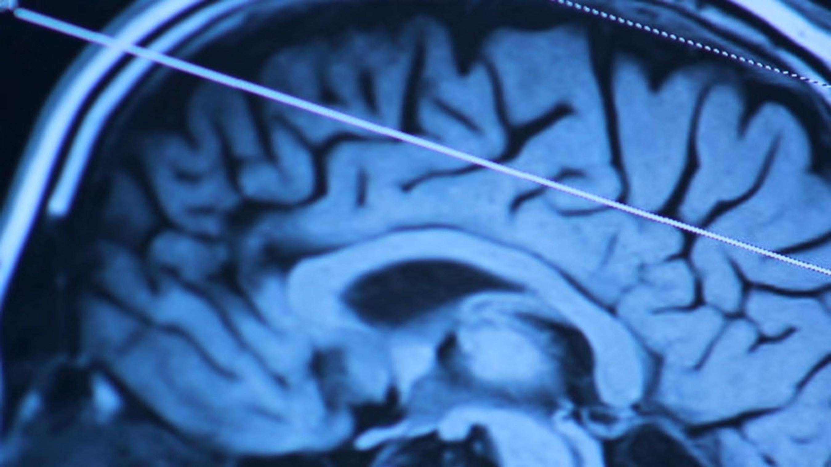Diagnostic of brain health