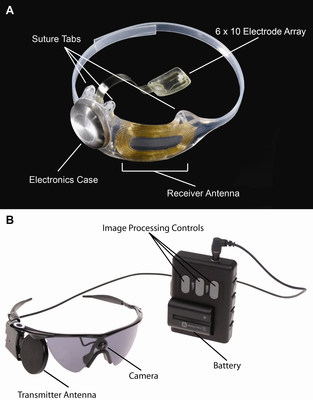 The Argus II System: Figure A, The implanted portions of the Argus II System. Figure B, The external components of the Argus II System. Images in real time are captured by the camera mounted on the glasses. The video processing unit down-samples and processes the image, converting it to stimulation patterns. Data and power are sent via radiofrequency link from the transmitter antenna on the glasses to the receiver antenna around the eye. A removable, rechargeable battery powers the system.