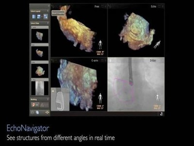 EchoNavigator: Fuses live 3D TEE and X-ray in real time to provide image guidance in the 3D space, supporting physicians in complex structural heart procedures to decide, guide and confirm the optimal treatment path, enabling better patient outcomes and more cost effective care (PRNewsFoto/Royal Philips)