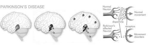 What is Parkinson's Disease? Parkinson's disease is a chronic progressive neurological disease that ...