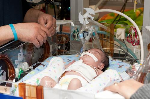 U-M Health System's ECMO Team Treats its 2,000th Patient, a Twin Boy Born with a Congenital