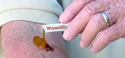WoundSeal is the only first aid product that stops minor external bleeding through the creation of an instant scab (or seal) once the powder combines with the wound's own blood.
