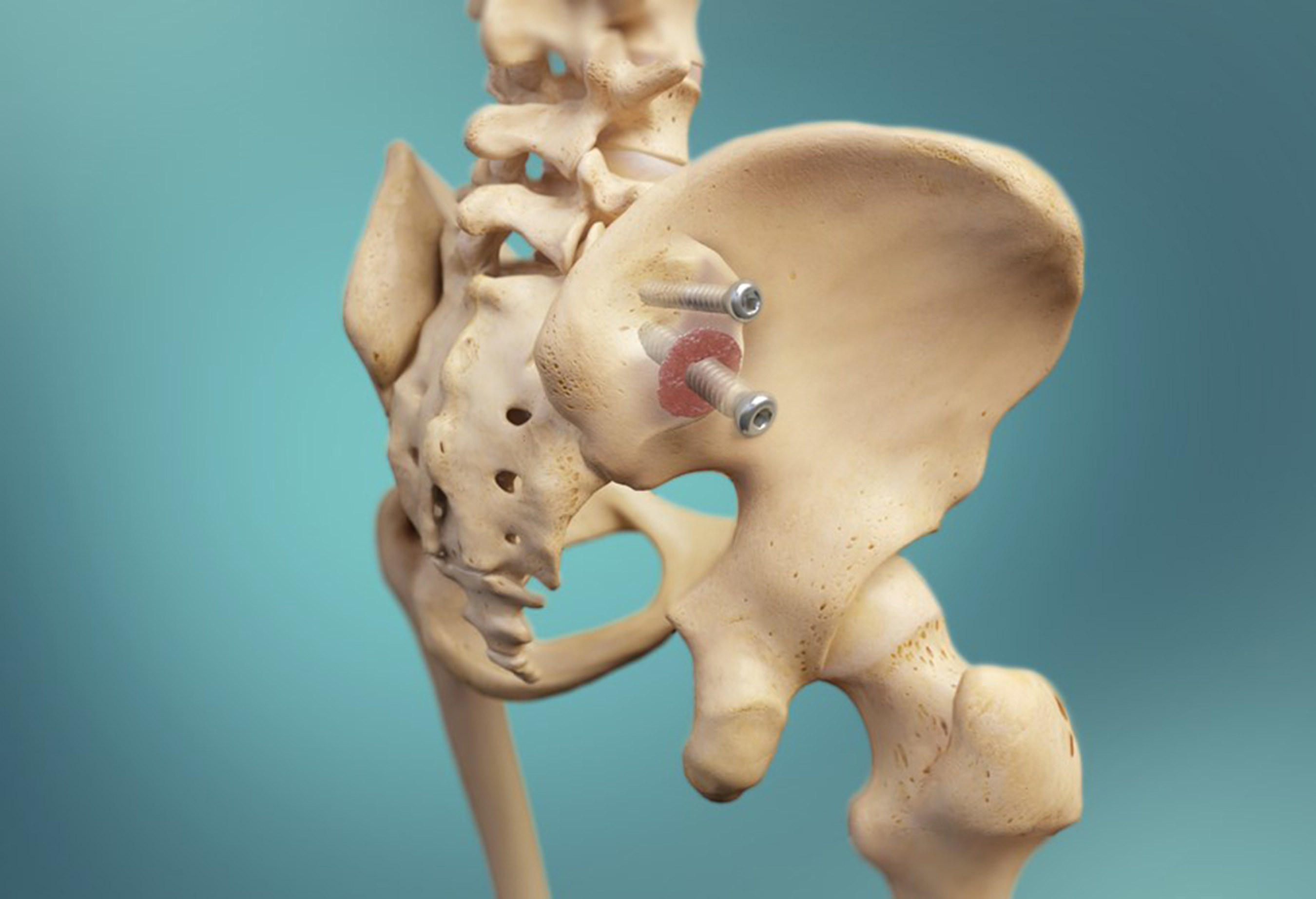 SImmetry Sacroiliac Joint Fusion System design enables true fusion for lasting relief of low back pain.