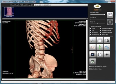 Securely receive, view and exchange medical images at www.MatrixRay.com