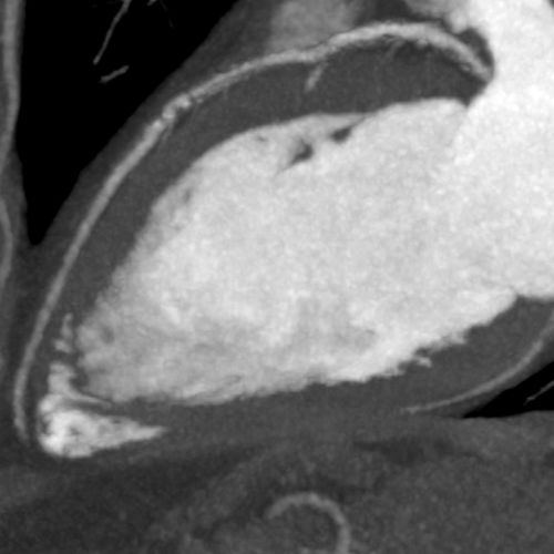 Subtracted - No hemodynamically significant stenosis is seen is the LAD – Courtesy Dr K Kofoed, ...