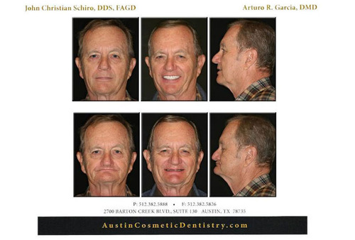 Austin Dentist John Schiro, DDS Wants 2013 To Be The Year Of The Smile Makeover Facelift.  (PRNewsFoto/Austin Cosmetic Dentistry)