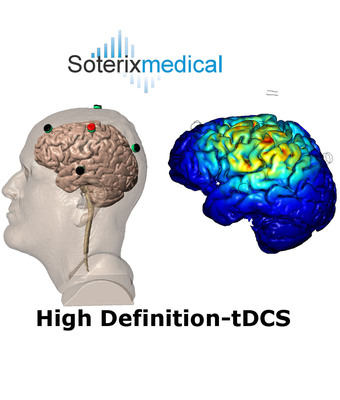 Soterix Medical's HD-tDCS uses multiple small scalp electrodes to inject currents thereby achieving targeted stimulation.  (PRNewsFoto/Soterix Medical, Inc.)