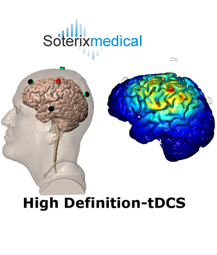 Soterix Medical's HD-tDCS uses multiple small scalp electrodes to inject currents thereby achieving ...