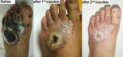 plantar fasciitis steroid injection dose