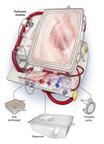 The Organ Care System (OCS(TM)) Heart