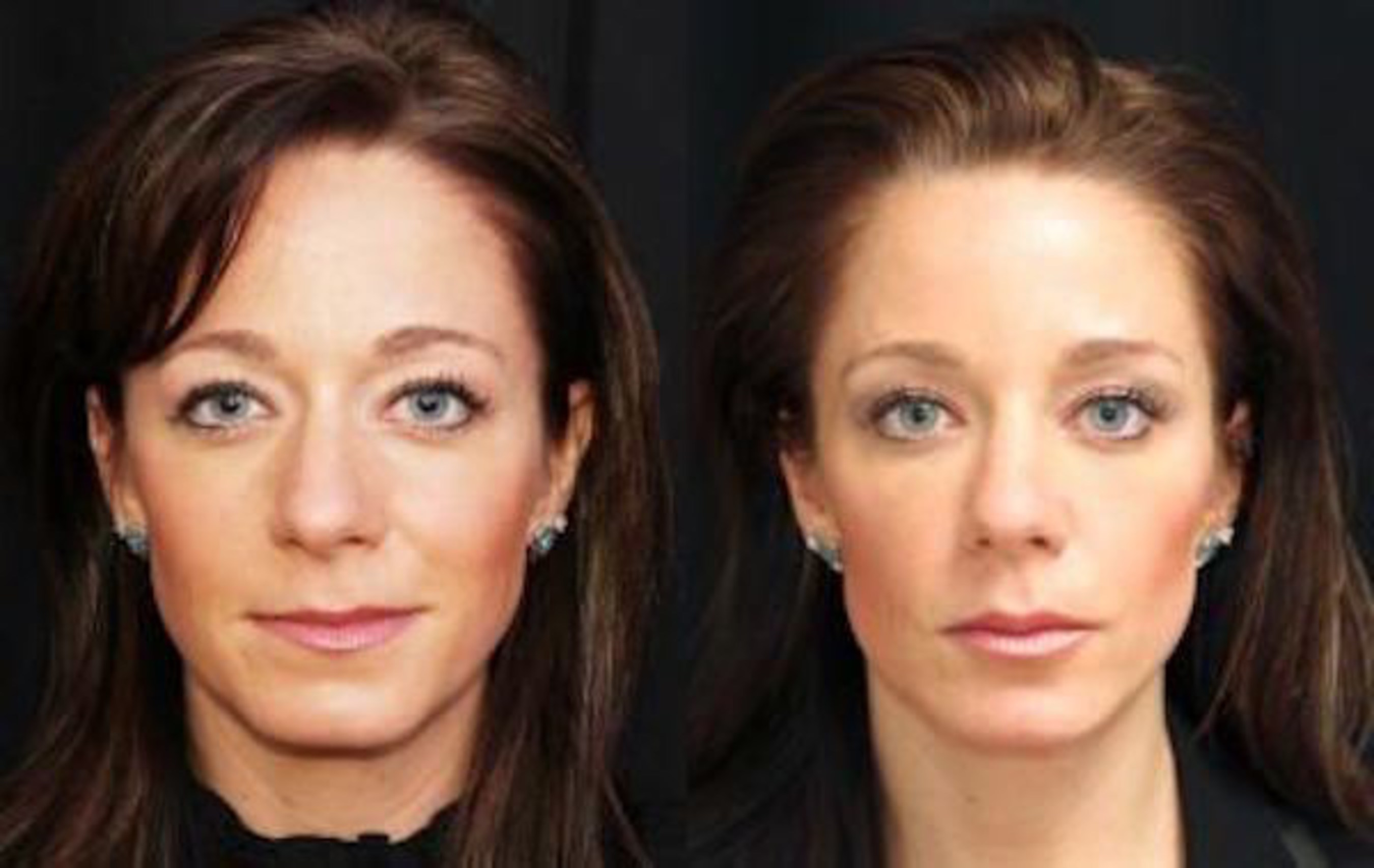 Miami Plastic Surgeon Recognized by International Society of