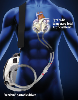 SynCardia manufactures the world's only FDA, Health Canada and CE (Europe) approved Total Artificial Heart as a bridge to human heart transplant for patients suffering from end-stage biventricular heart failure. (PRNewsFoto/SynCardia Systems, Inc.)