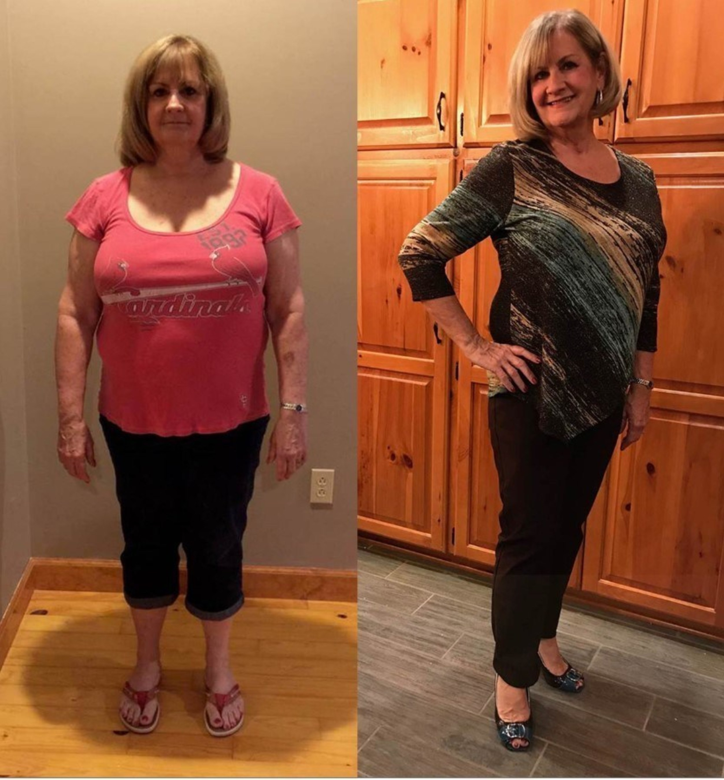 After diet and exercise failed, Andrea lost 50 pounds in just five months with ReShape.