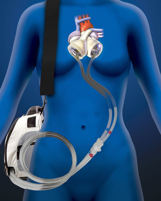 The 50cc SynCardia Total Artificial Heart is designed for use in patients of smaller stature, including women and adolescents. It has been designated as a Humanitarian Use Device (HUD) by the FDA for destination therapy and pediatric bridge to transplant. Prior to clinical use, a Humanitarian Device Exemption (HDE) application for each indication must be approved by the FDA.  (PRNewsFoto/SynCardia Systems, Inc.)
