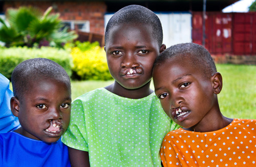 Operation Smile and Smile Train Launch Rwanda Smiles™, to Create Africa's First Cleft-Free Country