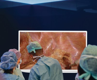 Olympus' VISERA 55-inch primary operative display transforms minimally invasive surgery into an immersive experience by bringing the entire surgical team into the operation.