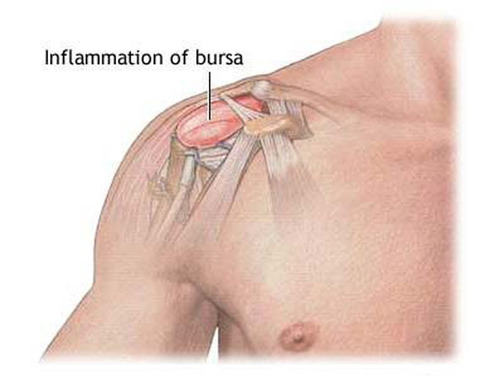 Is B12 an Effective Bursitis Treatment?  (PRNewsFoto/US Injectables LLC)