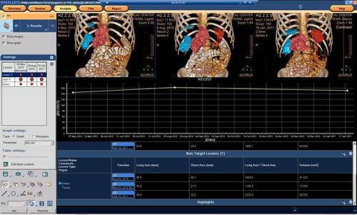 Multi-modality tumor tracking result page on Intellispace Portal 6, showing the progress of the tumors, calculated as RECIST, in numeric and graph (PRNewsFoto/Royal Philips)
