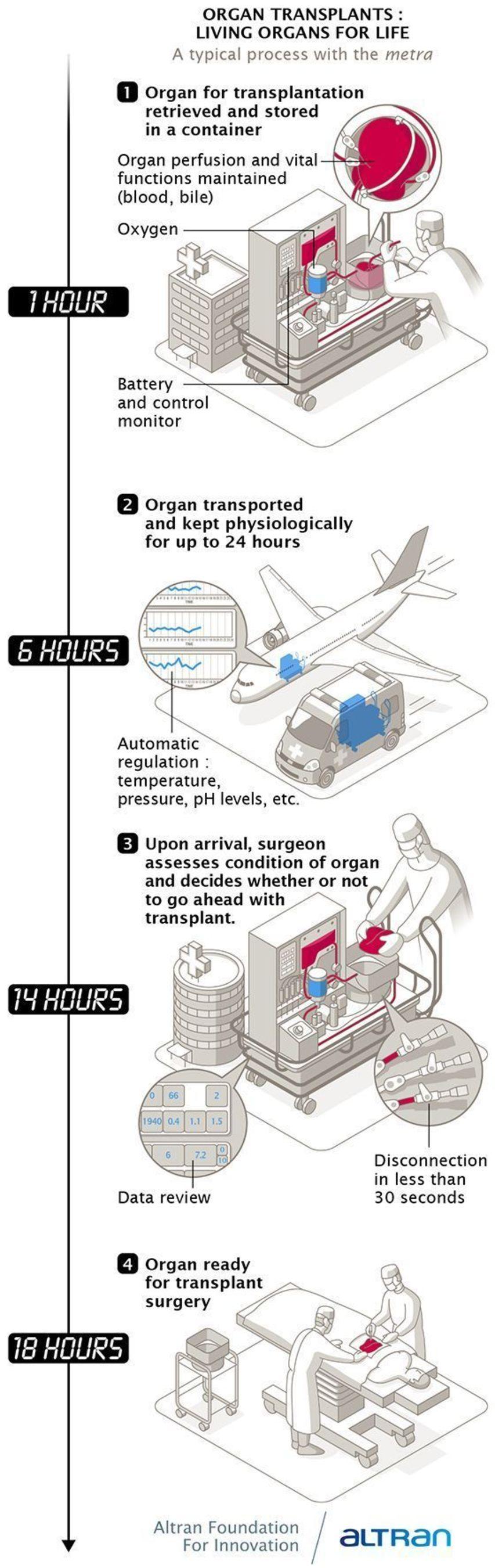 Infography Altran Foundation: an intelligent device for organ transplants. (PRNewsFoto/Altran)
