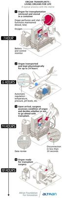 Infography Altran Foundation: an intelligent device for organ transplants.