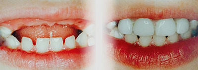 Baby Bottle Tooth Decay Treatment - Before & After. (PRNewsFoto/dzine it inc.) (PRNewsFoto/DZINE IT INC.)