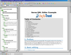 InfoTrust Group Launches Easy-to-use, Structured XML Editor