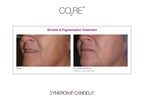 CO2RE Wrinkle and Pigmentation Treatment