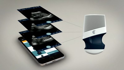 Clarius Wireless Ultrasound Scanner