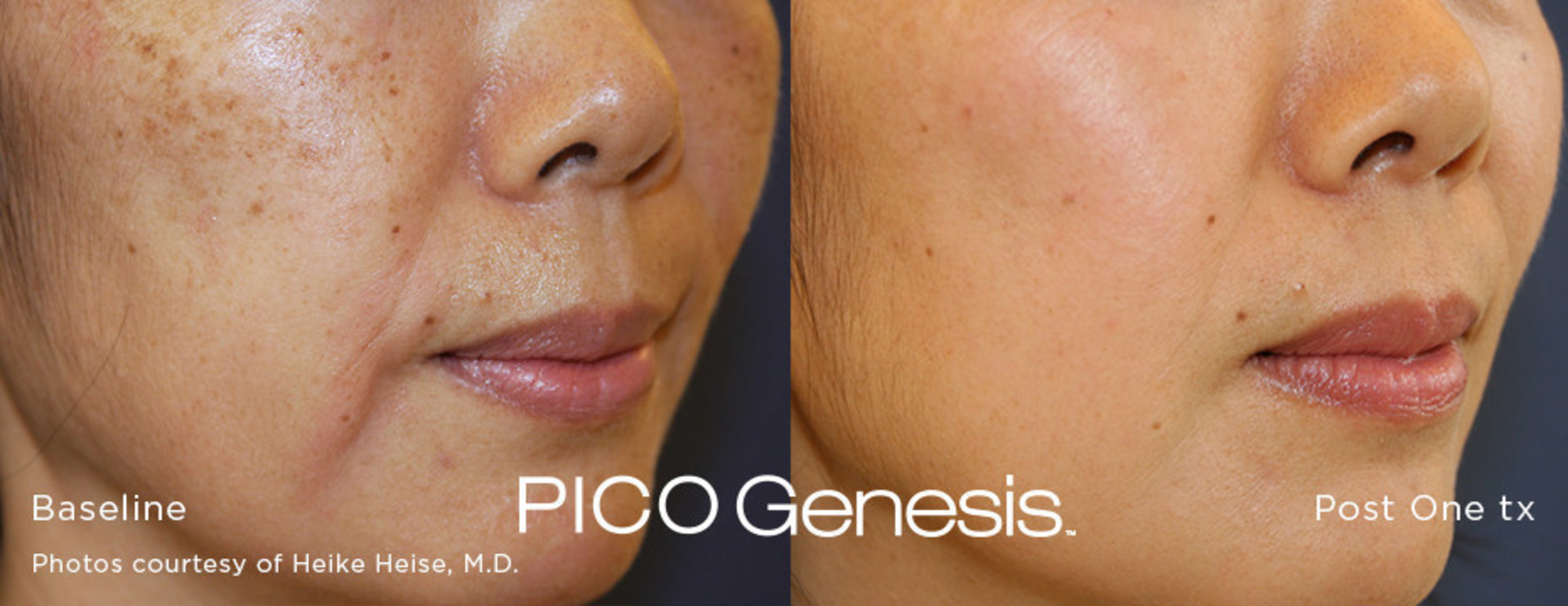 CUTERA Launches New PICO Genesis™ Treatment With enlighten™