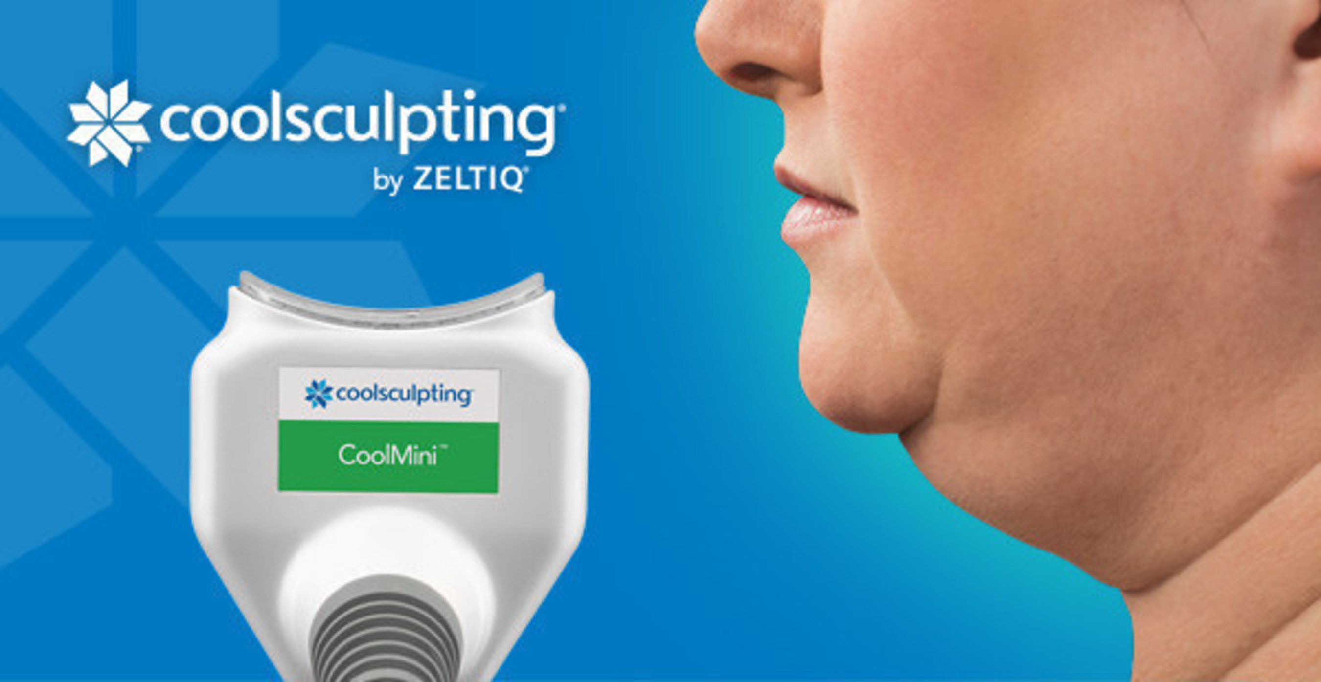 Introducing the CoolMini Applicator for Coolsculpting Treatment to Trifecta Med Spa in New York