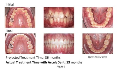 Dr. Kenji Ojima treated a 27-year-old female patient who had severe crowding and a high canine. In addition to extracting the first premolars, Ojima's treatment plan included 72 aligners for a projected 36-month treatment. With AcceleDent, the patient changed aligners every five days and completed treatment in 13 months.