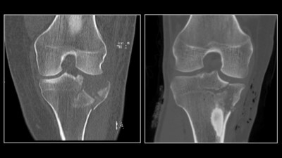 An ultra-low dose radiation CT scan of a fracture of the tibial plateau (left) compared to a conventional dose CT scan.
