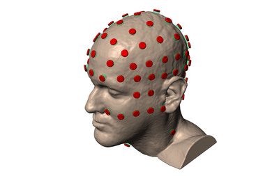 HD-tDCS uses multiple small scalp electrodes to inject currents thereby achieving targeted stimulation.  (PRNewsFoto/Soterix Medical, Inc.)