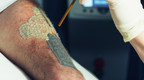 Baltimore Tattoo Removal Delivers Faster Clearance For Colorful Tattoos With Astanza Trinity