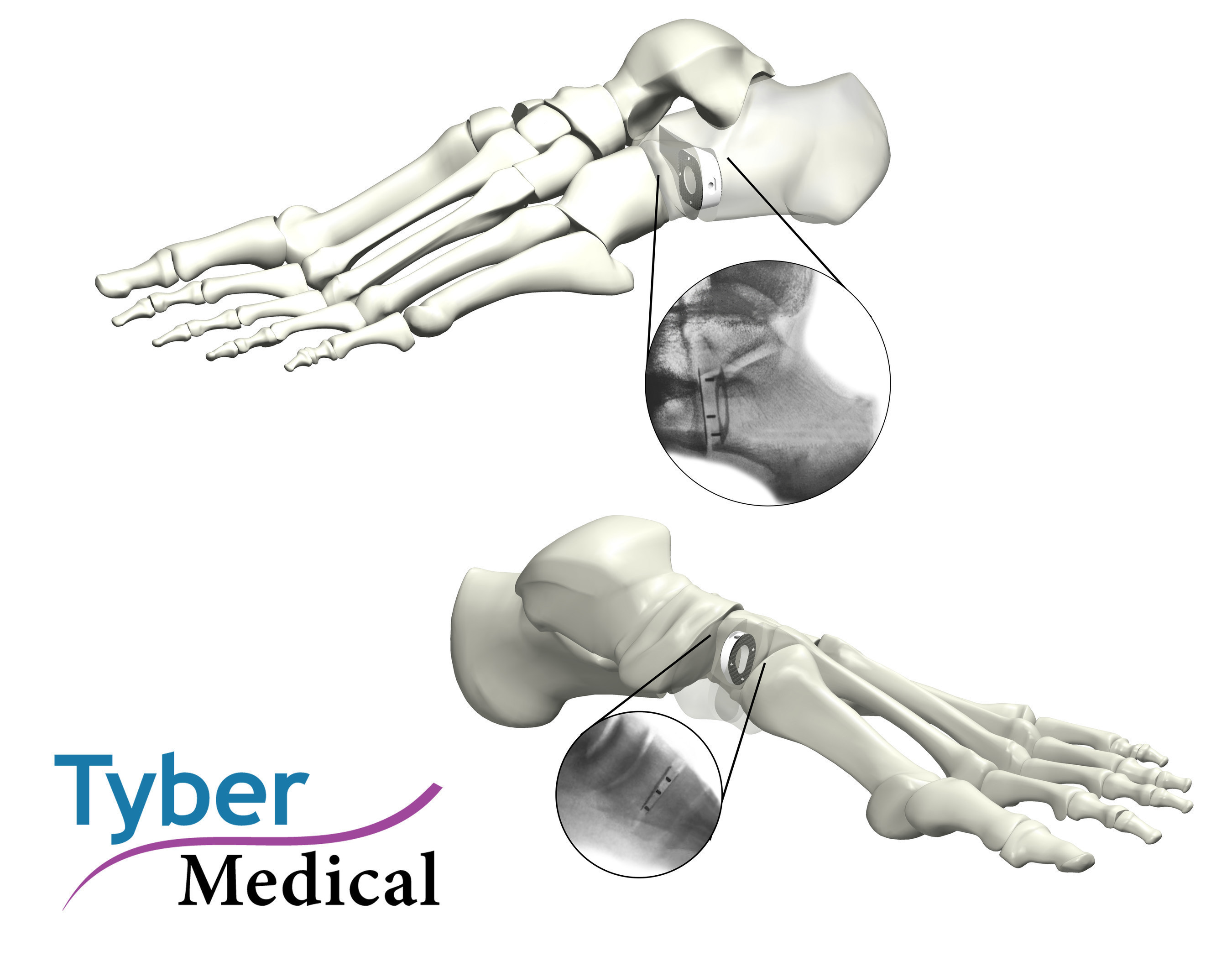 Tyber Medical Announces The Full Market Release For The TyWedge™ Evans And Cotton Osteotomy Wedge