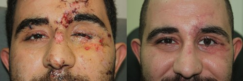Ali suffered extensive trauma to his eye and face (left) which was expertly repaired and reconstructed by Dr ...