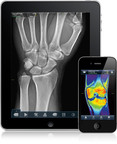 VueMe allows patients to view and store their own medical images, as well as securely share their scans with physicians and family members. Shown on the iPad is an x-ray of the wrist, while the iPhone displays an MRI of the knee.  (PRNewsFoto/MIM Software Inc., Peter Belanger)