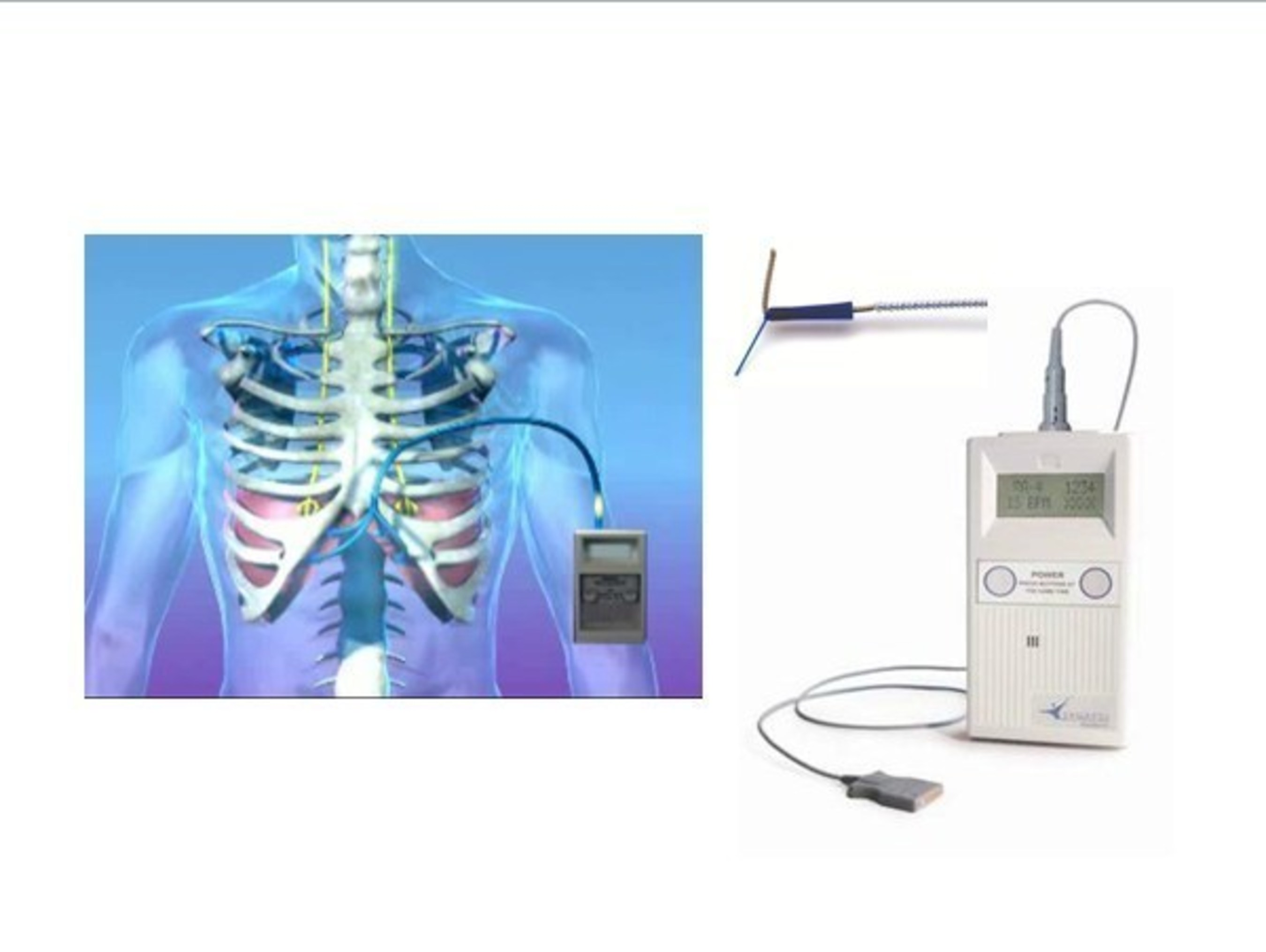 NeuRx Diaphragm Pacing System (DPS) approved by FDA, HDE,  for spinal cord and ALS patients