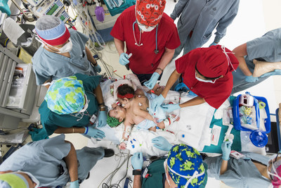 Surgeons and clinicians at Texas Children's Hospital prepare to separate conjoined twins Knatalye Hope and Adeline Faith Mata. Born in April 2014 at Texas Children's Pavilion for Women, the girls were successfully separated on Feb. 17, 2015 and are recovering in the Pediatric Intensive Care Unit at Texas Children's.