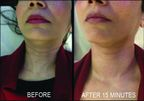 WISHPro reduces fine lines and wrinkles in just 15 minutes.