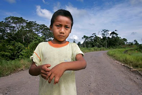 Nine-year-old Jairo Yumbo shows his birth-deformed hand on the road in front of his home in Rumipamba, Ecuador, where Chevron drilled for oil. Thousands of Ecuadorians have died or suffer from serious medical problems caused by Chevron's contamination. Photo by Lou Dematteis.  (PRNewsFoto/Amazon Defense Coalition)