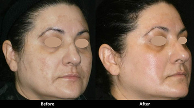 Before and after one A E Skin Ultimate Rejuvenation treatment with a skin care regimen