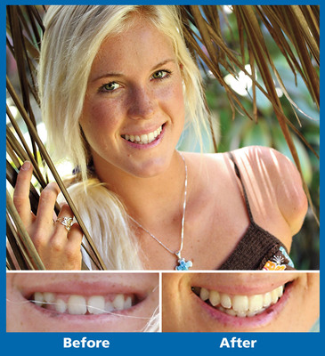Pro surfer Bethany Hamilton relied on the Damon System to quickly and comfortably transform the health and beauty of her smile.  (PRNewsFoto/Ormco Corporation)