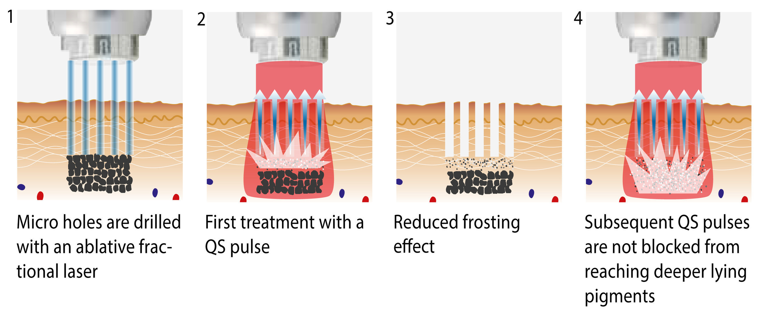 FracTat (TM) Procedure