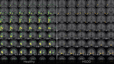 Brain imaging shows a fundamental difference in prefrontal brain circuitry response to sexual stimuli between women with HSDD and those without.