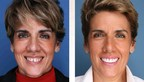 Dr. Maddahi's Smile Lift displays anti-aging dentistry before & after