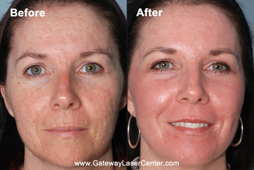 New Method for Treating Acne Scars Shows Significant Improvement